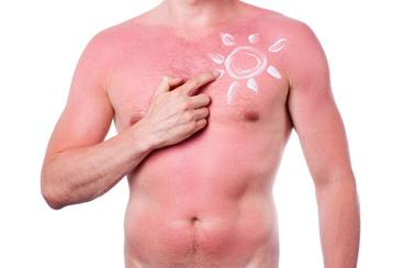 sun damage causes skin cancer